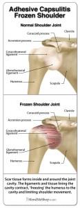 frozen-shoulder-adhesive-capsulitis-rotator-cuff